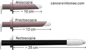 anoscopia proctoscopia y rectoscopia