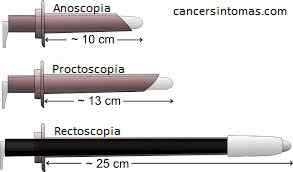 Anuscopia, Proctoscopia e Colonoscopia