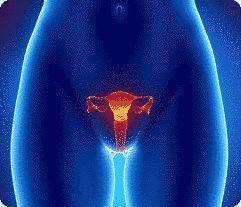 Câncer de útero