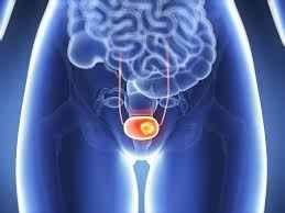 Cáncer de vagina