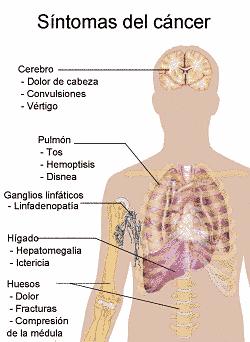 Síntomas del cáncer