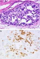 cancer de mama triple negativo