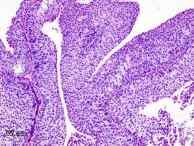 cancer de vejiga de celulas de transicion