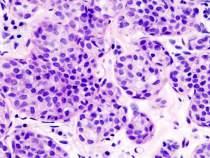carcinoma lobular invasivo