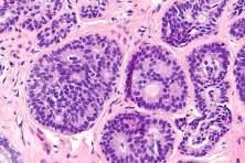 hiperplasia atipica de mama