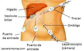 laparoscopia de vesícula biliar