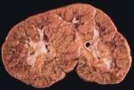 nefroblastomatosis