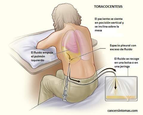 sintomas de cancer al pulmon avanzado